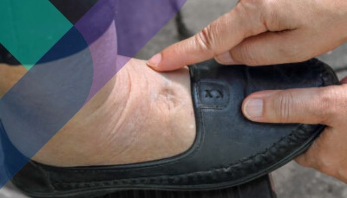 Combatiendo la hinchazón de pies y piernas del adulto mayor